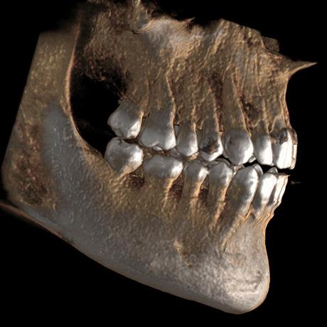 3D image of a skull