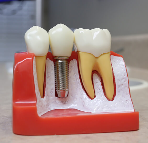 dental implant diagram model